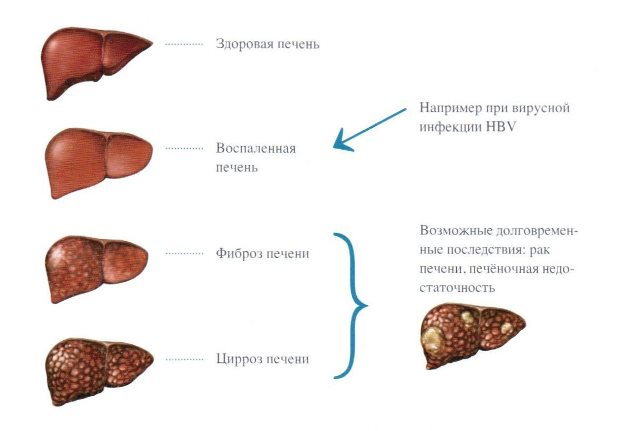 A gyertyák neve a prosztatitis gyulladásából