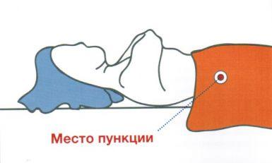 Пункция печени