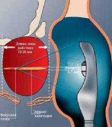 Ультразвуковые лучи фокусируются в точках-мишенях и вызывают разрушение раковых тканей